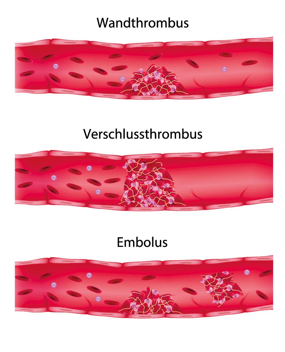 Die Speziese der Operationen der vaskulösen Chirurgie